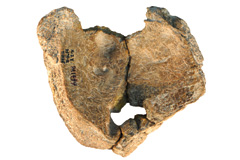 china-parietal-foramen