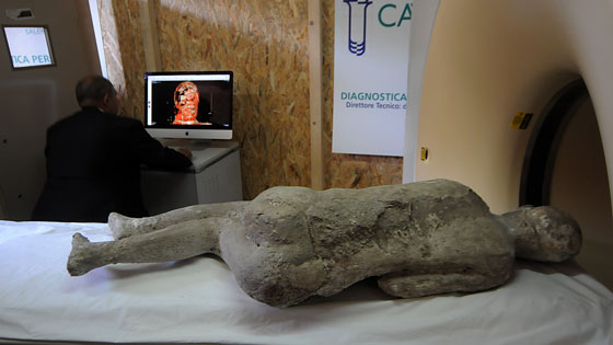 After restoration in one lab, some casts were taken to a second lab to undergo CT scans. The 3-D images created by the scans are revealing details about the individuals' remains, as well as the condition of the casts themselves.