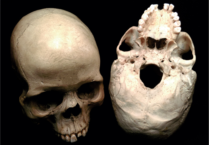 Trenches human skulls