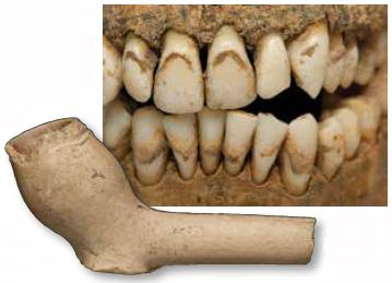 Dunbar Incisors Clay Pipe Overlay