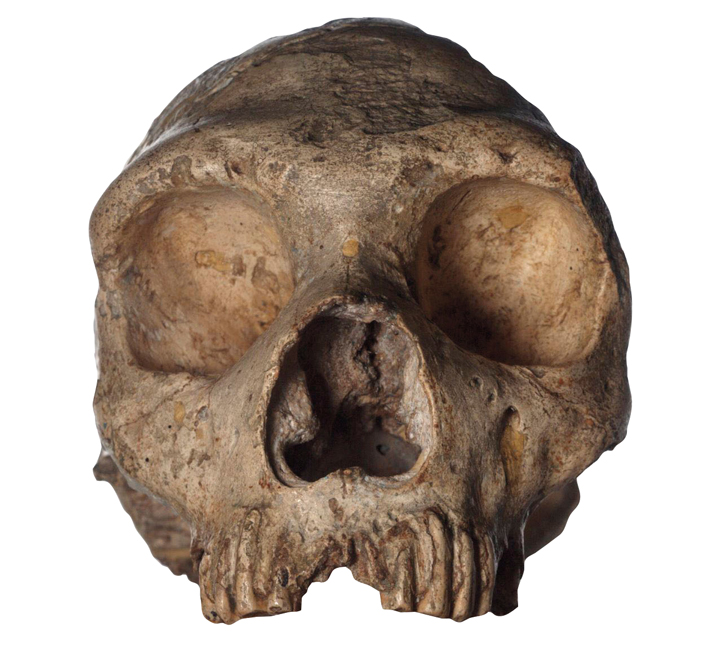 Painful Past - Archaeology Magazine