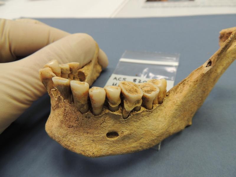 The Virtues of Stone Age Dental Hygiene