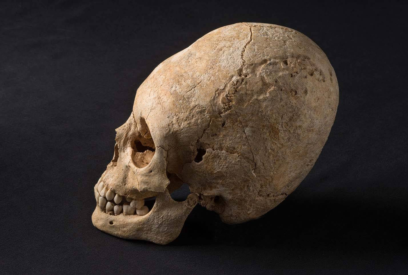 Alsace Hun Deformed Skull
