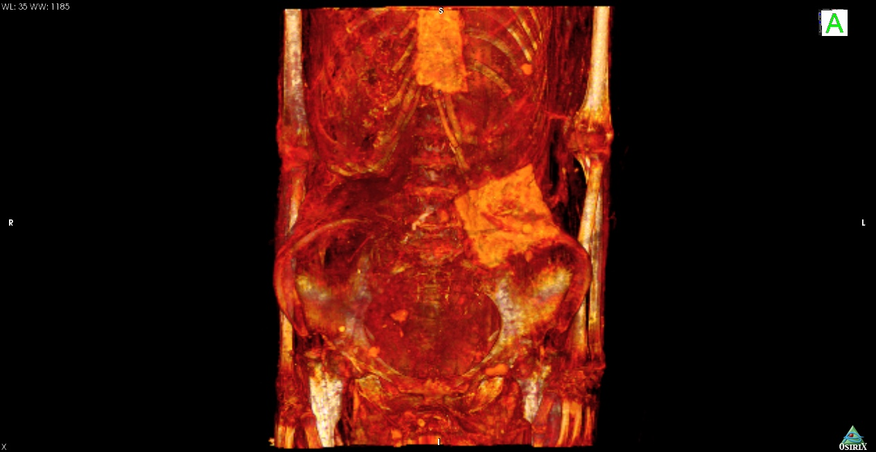 ancient-egyptian-mummy-ct-scan-3