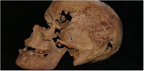 4,200-Year-Old Case of Breast Cancer Found in Egypt