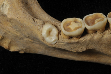 Atapuerca Neolithic teeth