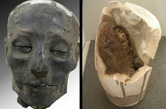 ancient egyptian archeological evidence of disease While the archaeological record may not shore up the biblical account of the  exodus from egypt, in light of recent finds one could be forgiven for.