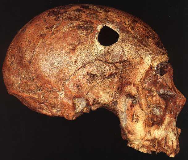 Saccpastore Neanderthal Skull