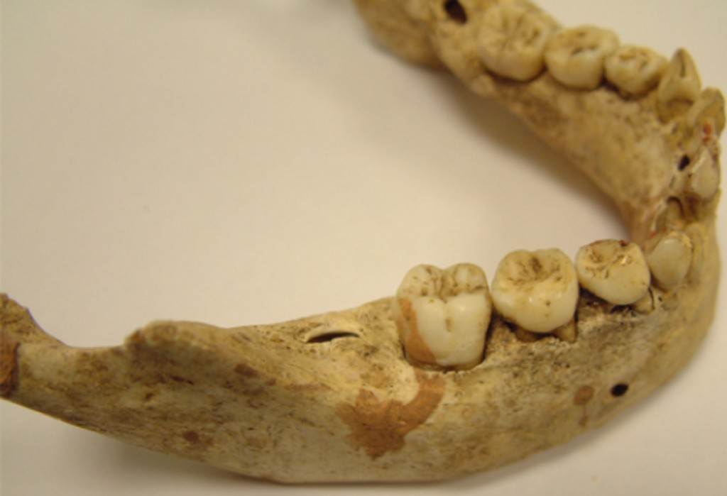 Canterbury medieval teeth