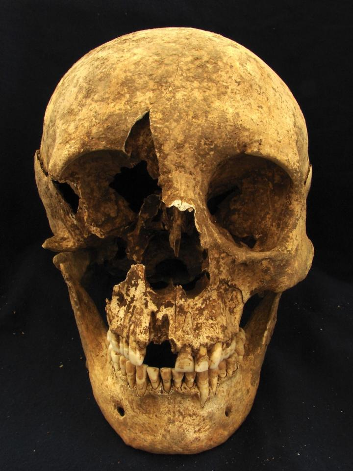 Rome migrant skull