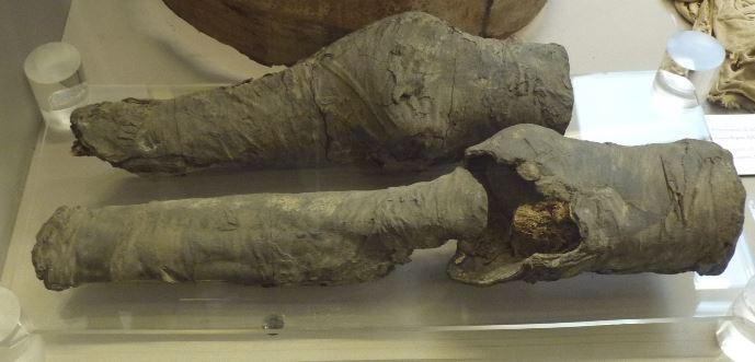 Mummified Legs May Have Been Queen Nefertari's