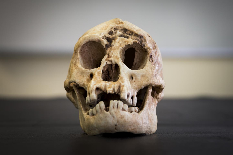 Homo floresiensis bones