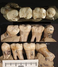 Croatia Neanderthal Dentistry KU