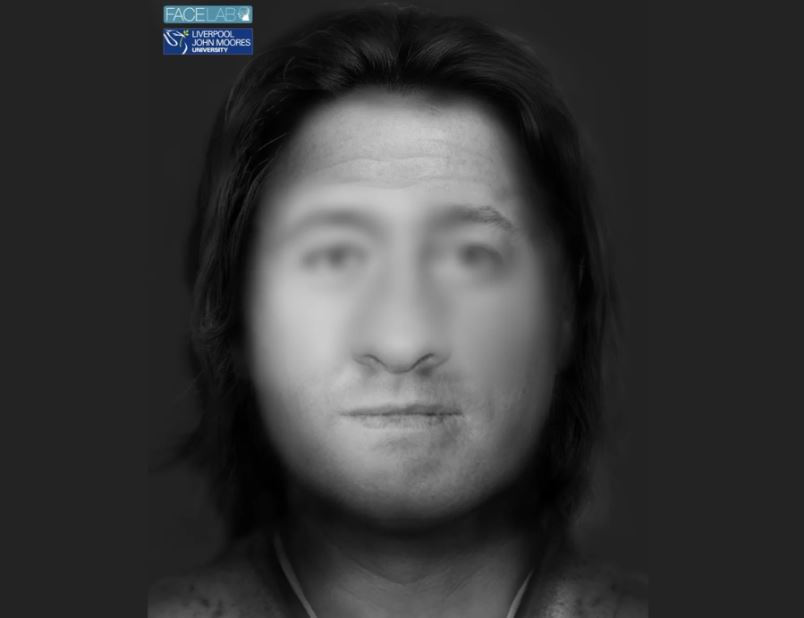 Derbyshire facial reconstruction