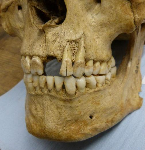 Britain dental plaque