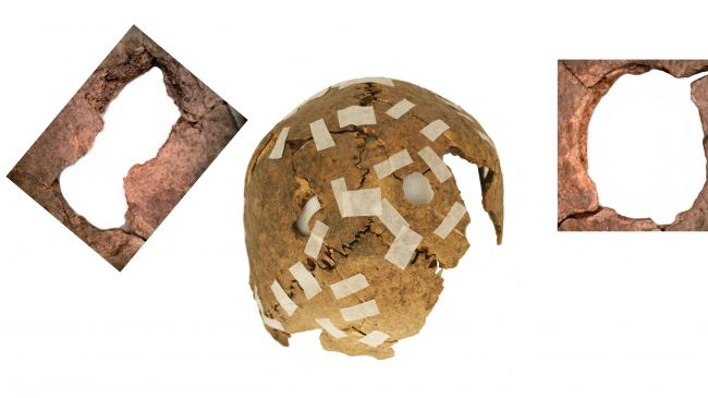 Skulls May Have Been Displayed as Symbol of Inca Power - Archaeology Magazine