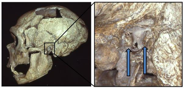 Neanderthal surfer ear
