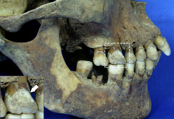 Dental Plaque Offers Clues to Diet of Irish Famine Victims