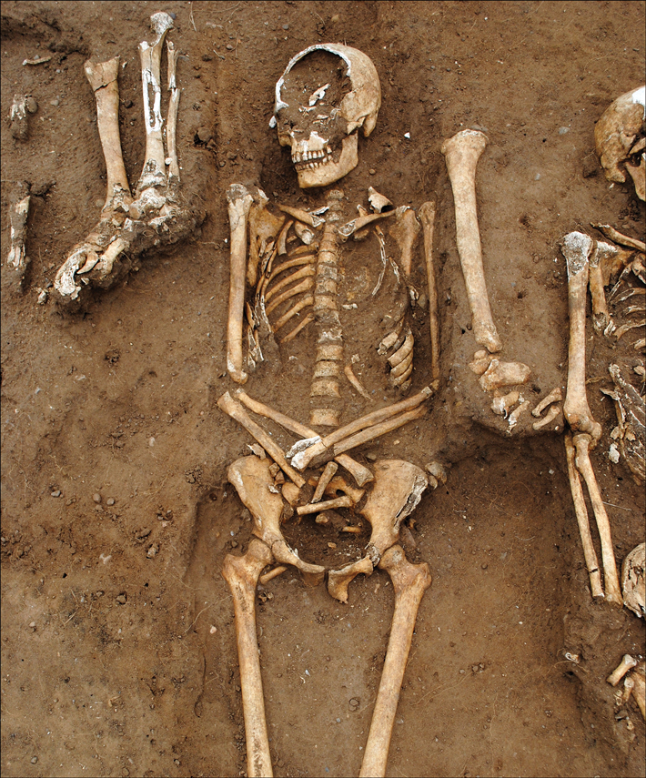 Medieval Plague Pit Discovered in Rural England - Archaeology Magazine