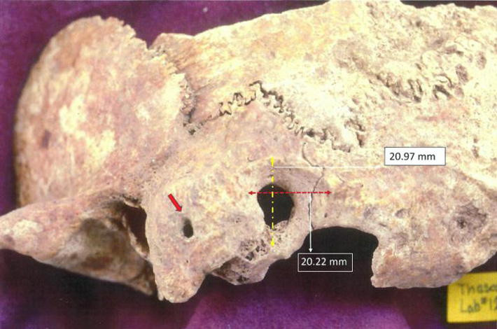 Evidence of Ancient Surgery Unearthed in Greece - Archaeology Magazine