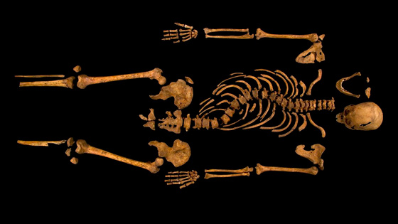 The almost fully intact skeleton shows that Richard III would have measured five-foot-eight-inches tall, a large man for the medieval era, though his spine shows he suffered from severe scoliosis. (Courtesy University of Leicester)