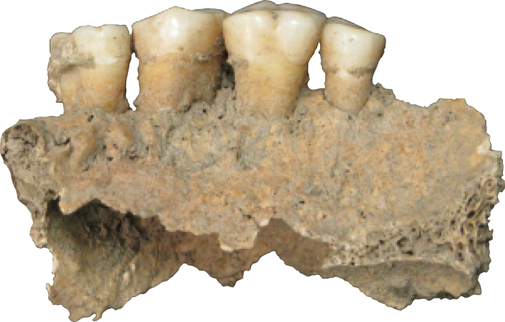 Microbiome Germany mandible